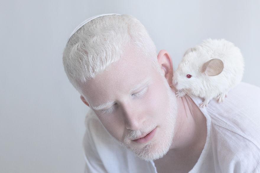 RGB.vn_albinopeople_07