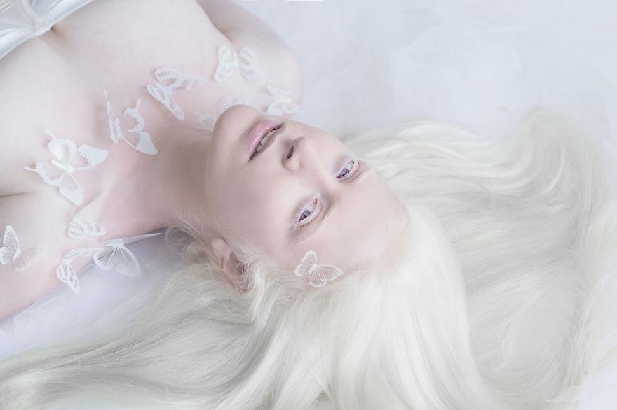 RGB.vn_albinopeople_01