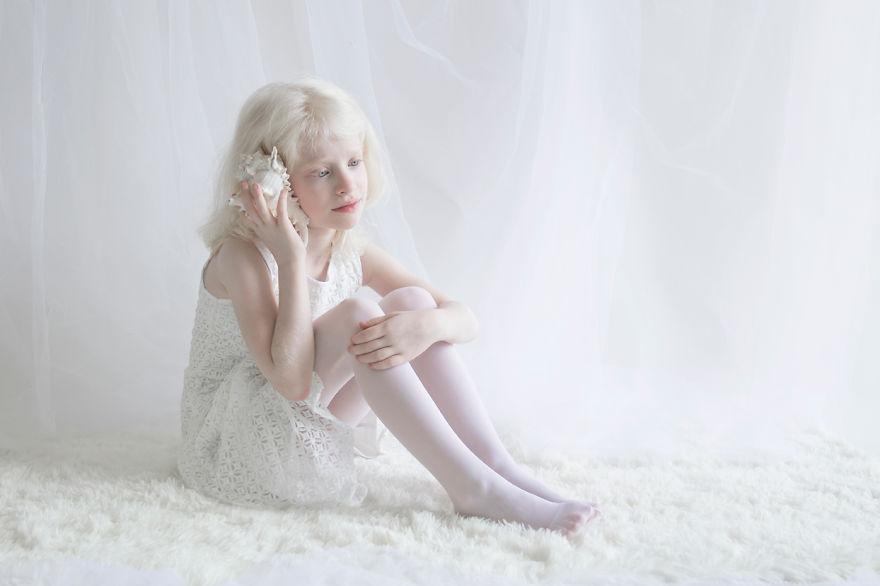 RGB.vn_albinopeople_10