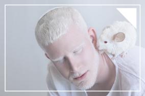 [Photography] Vẻ đẹp màu trắng từ chứng bạch tạng